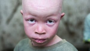 228214_violence_and_discrimination_against_people_with_albinism_in_malawi.jpg